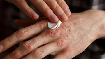 Pikkelysömör kezelése a Pigan étrenddel amelyből vörös foltok jelennek meg az orrán és az arcán