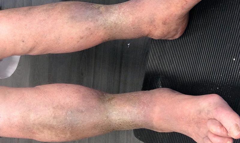 vörös folt a lábán, hol van a véna