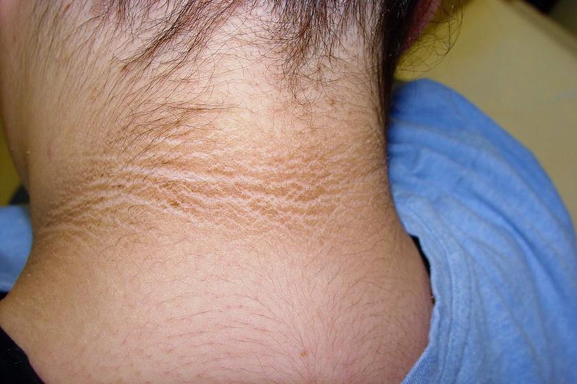 vörös foltok az arcon, a nyakon, a kezeken pitsunda pikkelysömör kezelése