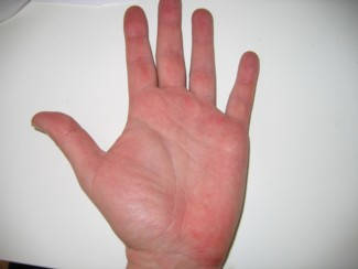 vörös folt van a térdén és viszket pikkelysmr tpusai hogyan kezddik hogyan kell kezelni