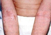 Piros pelyhes foltok a testön: okok és kezelés - Kezelés