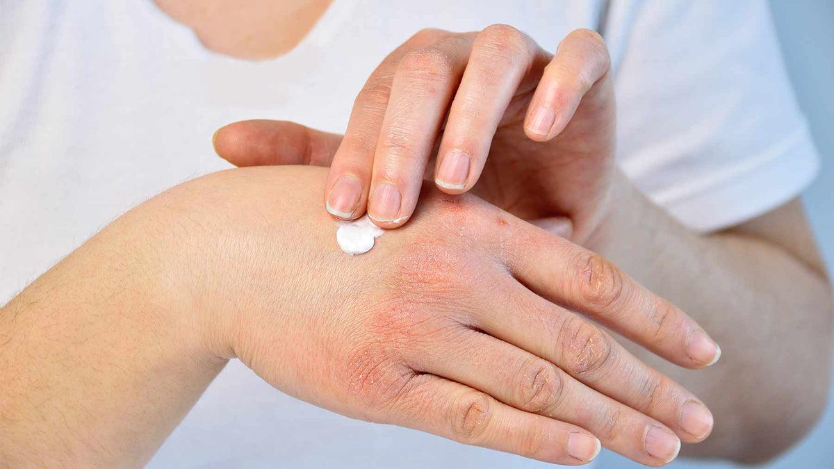 pikkelysömör kezelése orvosi eszközökkel mit kell tenni, ha vörös foltok vannak az arcon