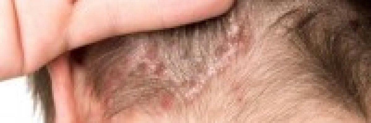 pikkelysömör a fejn megelzsre s kezelsre bőrirritáció viszketés vörös foltok