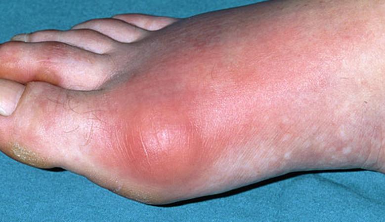 a lábujjak viszketnek és vörös foltok jelennek meg mint kezelni)