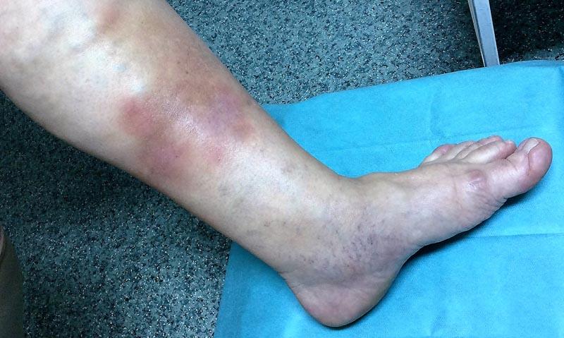 az alsó lábszáron piros folt viszket
