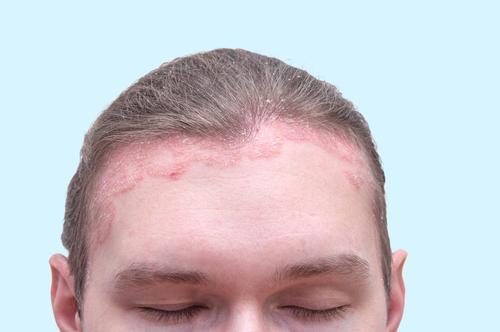 vélemények a pikkelysömör kezeléséről stelarral piros foltok az arcon fotó mi ez hogyan lehet megszabadulni