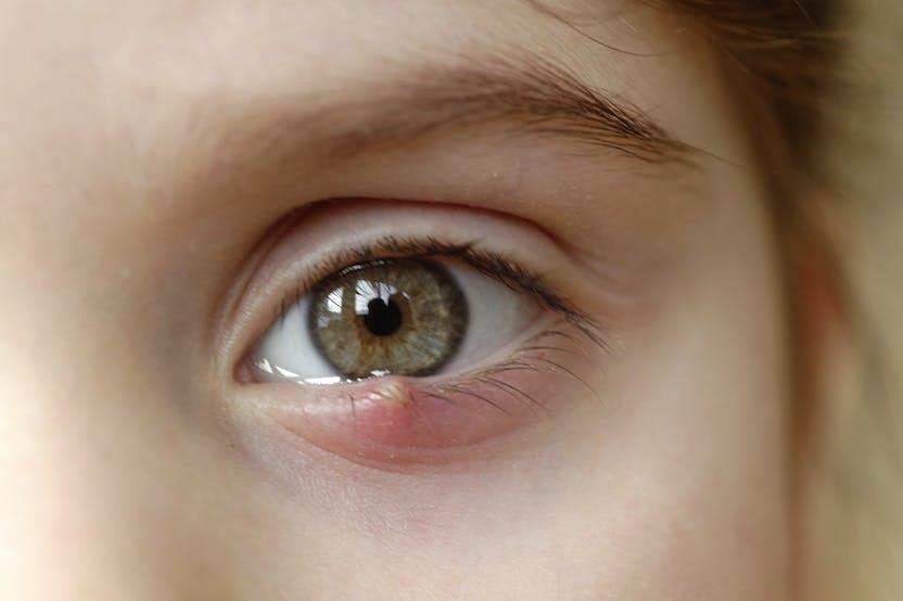 vörös foltok a szemhéjon mint kezelni ekcéma okai felnőttkorban