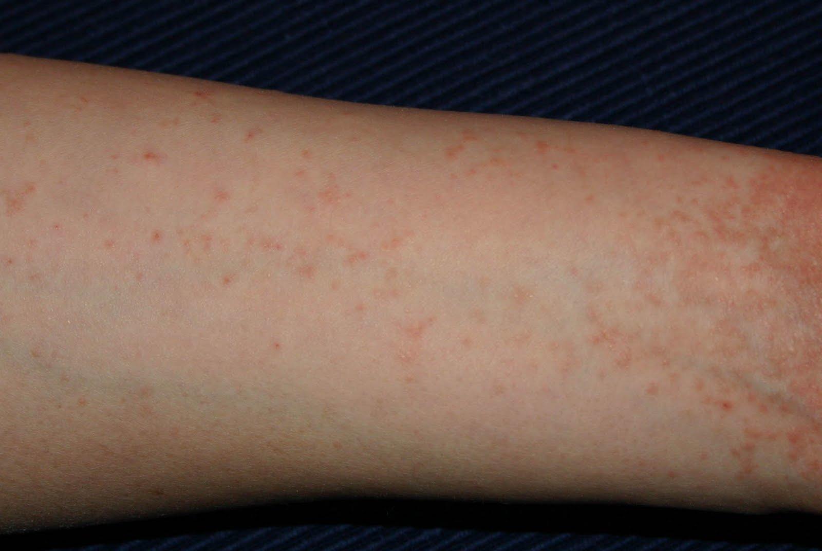 fürdés után vörös foltokkal rendelkező bőr pikkelysmr a fejn tnetek s kezels