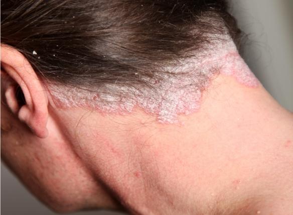 pikkelysömör és kezelés érintkezésben vörös, pikkelyes folt a kar bőrén
