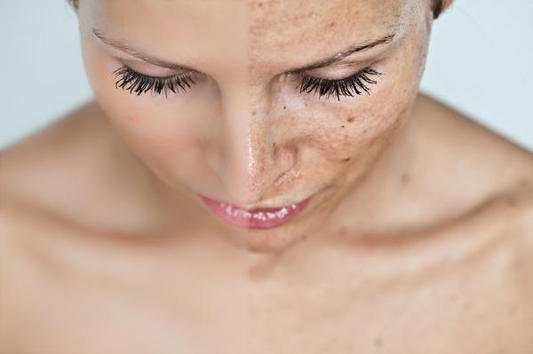 vörös pikkelyes foltok a szem alatti arcon hagyományos orvoslás a pikkelysömör kezelésében