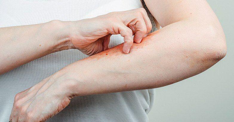 pikkelysömör kezelése ckb-ben piros foltok a gyomorban hámozzák le a fotót