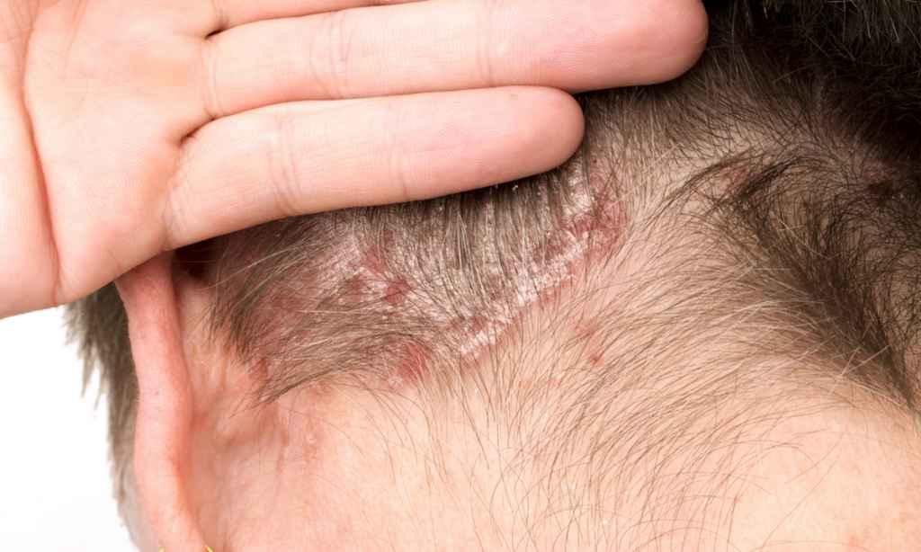olajos pikkelysömör haj kezelés sampon almag kezelés pikkelysömörhöz
