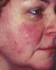 stressz után vörös foltok jelentek meg az arcon