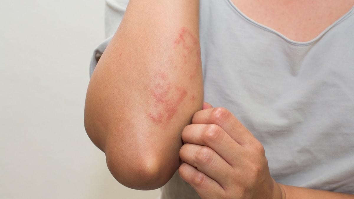 kiütések a lábon vörös foltok és viszketés formájában