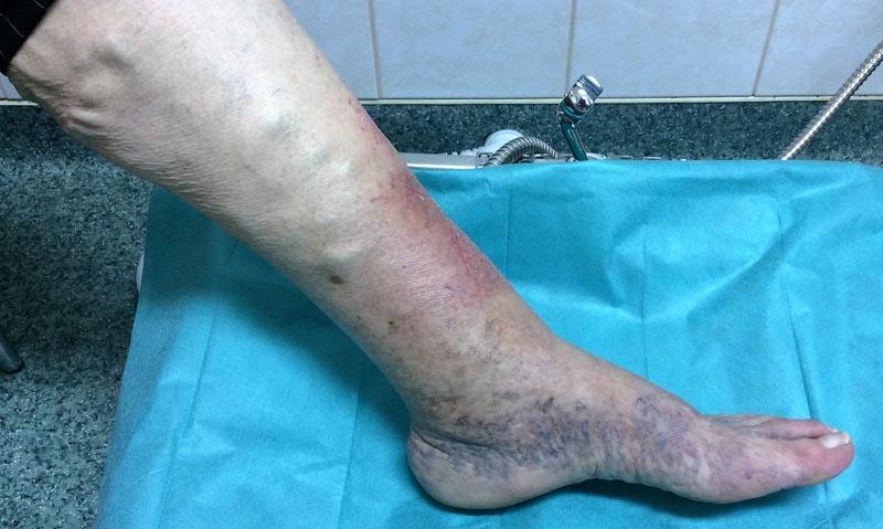 nátrium-tioszulfát pikkelysömör kezelésére vörös foltok jelennek meg és a lábak megduzzadnak