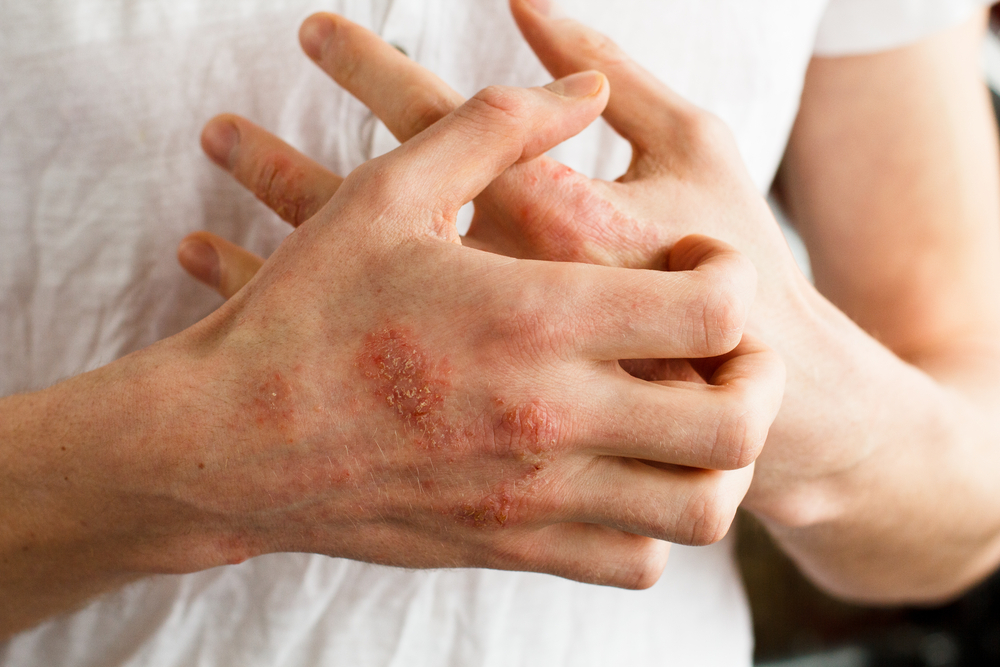 pikkelysömör kezelése az ujjakon vélemények