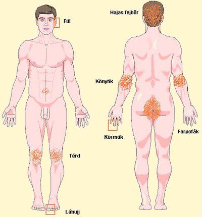ultraibolya készülékek pikkelysömör kezelésére vörös fájó foltok a lábakon és a karokon
