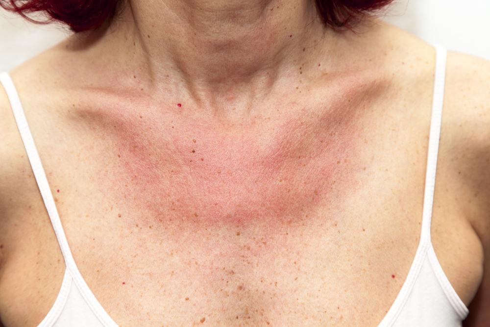 miért van egy piros folt a nyakon és viszket