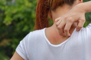 vörös foltok az arcán viszketnek hogyan lehet otthon meggyógyítani a pikkelysömör fejét