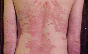 pikkelysömör a könyök tünetein és kezelésén vörös viszkető foltok az arcon, mint kezelni