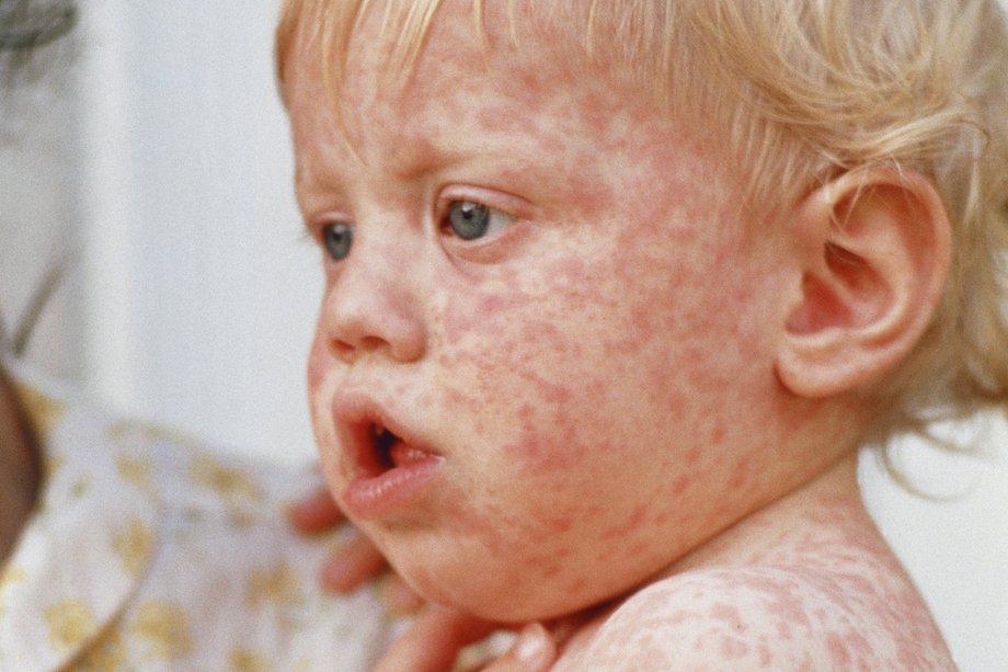 Vörösborfoltok   Szőnyeg foltok   Folteltávolítás   Vanish HU