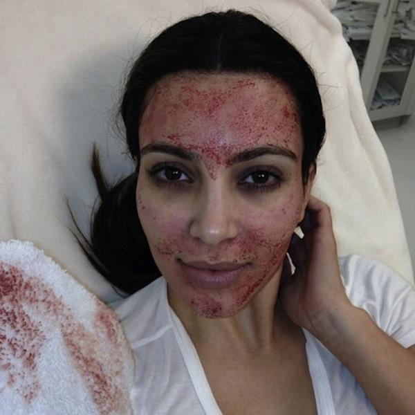 Kim Kardashian pikkelysömörrel küzd – fotó