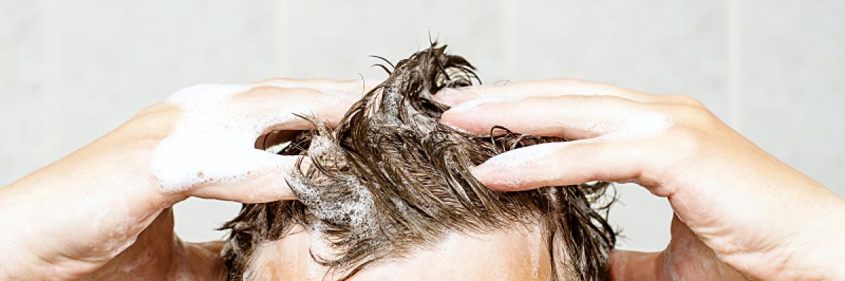 hogyan kezeljük a fejbőr pikkelysömörét otthon