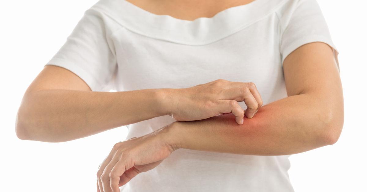 a borjún vörös folt viszket pikkelysömör és kezelés érintkezésben
