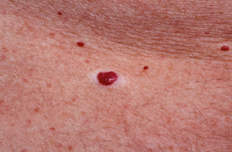 Vörös anyajegyek a testön: okok, kezelési módszerek - Lipoma
