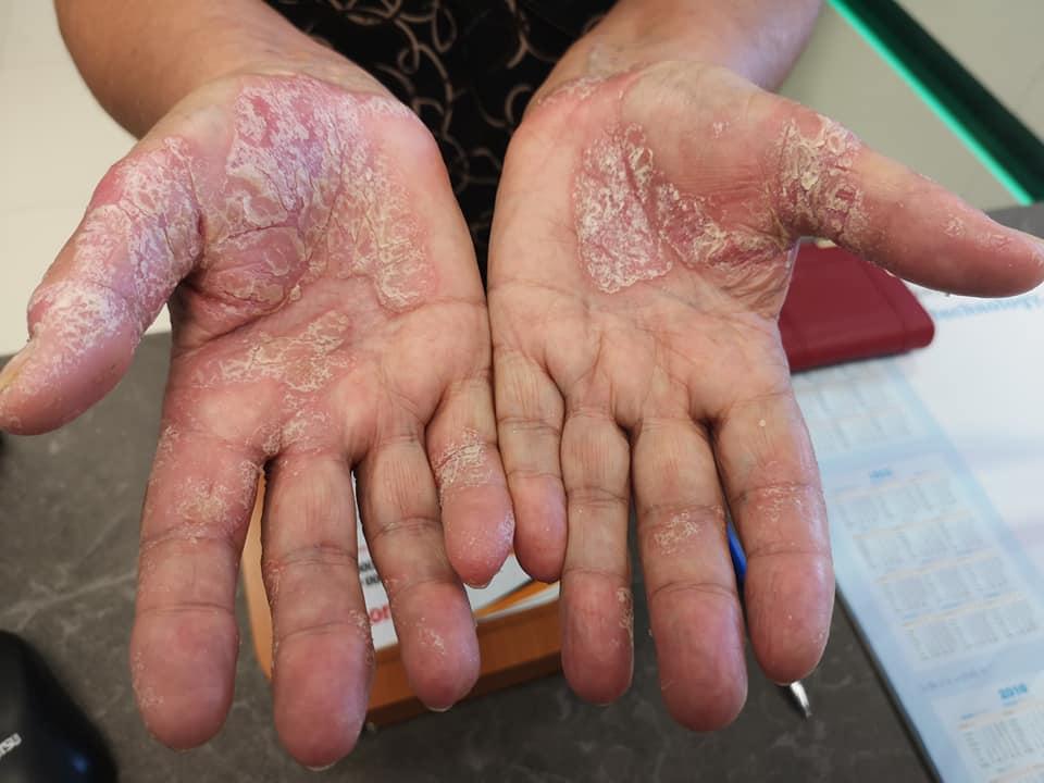 a kezén vörös folt, mint egy zúzódás seborrhea és pikkelysömör hogyan kell kezelni