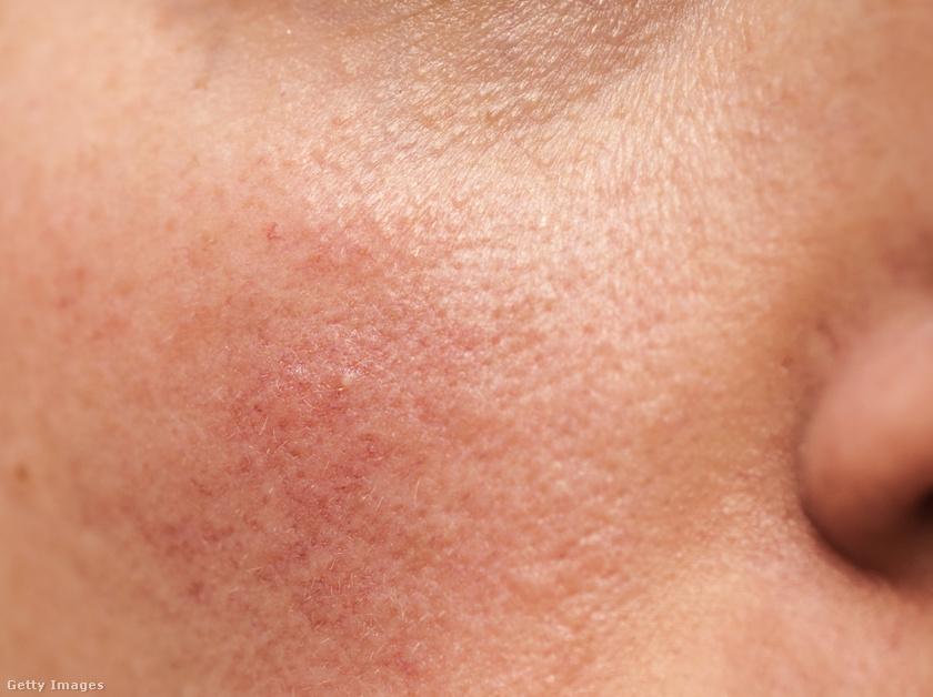 hogyan lehet eltávolítani a farmer vörös foltját amelyből vörös foltok jelennek meg az arcon és a testen