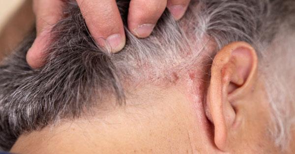 a nyakán a haj alatt vörös foltok viszketnek kiütés vörös foltok formájában a hason és a háton