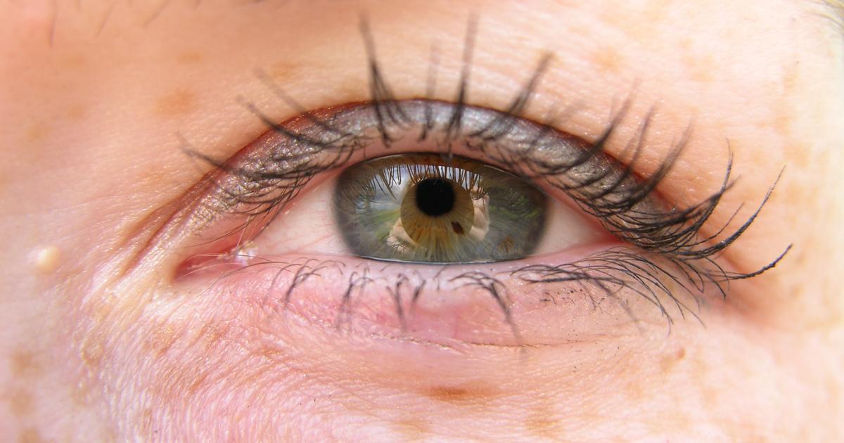 a szem alatt a vörös folt leválik, mint elkenődik