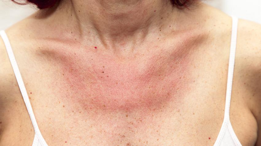 a vörös folt viszket és duzzadt fürdés után vörös foltokkal rendelkező bőr