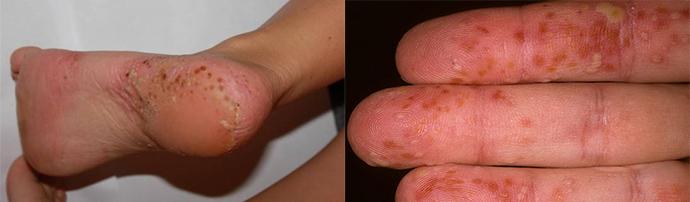 népi gyógymódok pikkelysömörre a lábakon