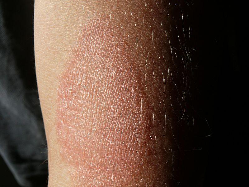 vörös foltok pontok formájában a lábán