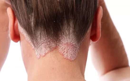 A bőr betegségei, Magyar kezels a pikkelysmr kezelsre