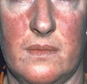 a pikkelysömör súlyosbodása az arc kezelésén lehetséges-e a pikkelysömör gyógyítása jóddal