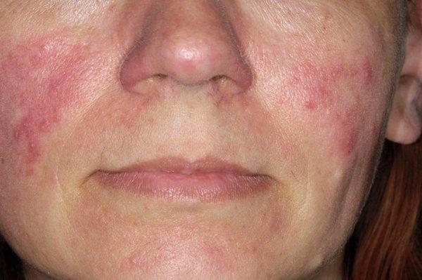 az orr közelében lévő arcon vörös foltok pikkelyesek és viszketőek