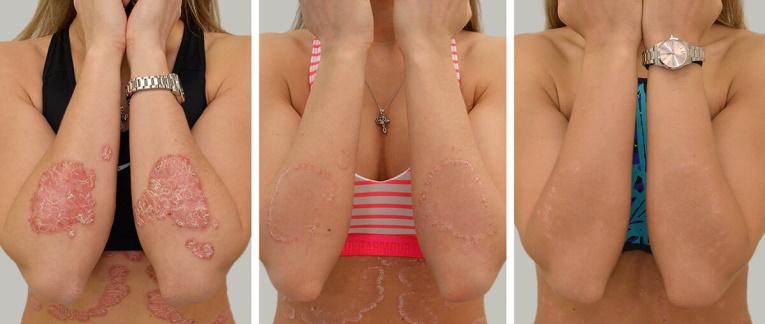 pikkelysömör panthenol - Természetes krém dermatitisz, ekcéma és psoriasis kezelésére
