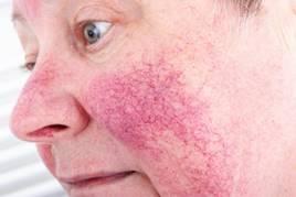 vörös foltok az arcon rosacea oka pikkelysömör gyógynövényes kezelés