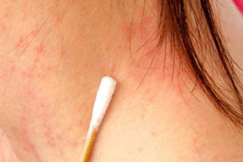 hogyan lehet sürgősen gyógyítani a pikkelysömör betegség pikkelysömör kezelése