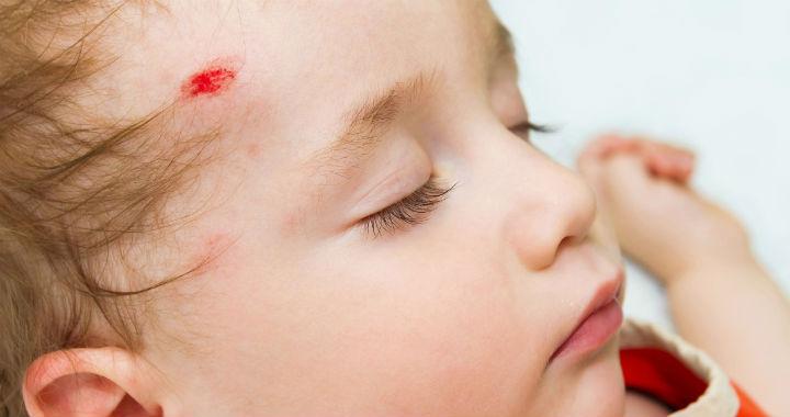 egy piros folt az arcon egy ütéstől vörös foltok jelentek meg a könyökön és viszketnek