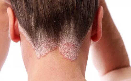 lehet-e gyógyítani a pikkelysömör arcát lábduzzanat és vörös foltok