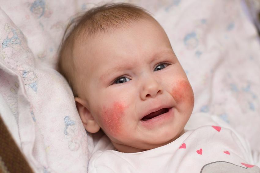 bőrbetegségek a fején vörös foltok