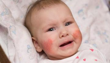 az ujján duzzadt és viszkető vörös folt alvás után vörös foltok jelennek meg az arcon