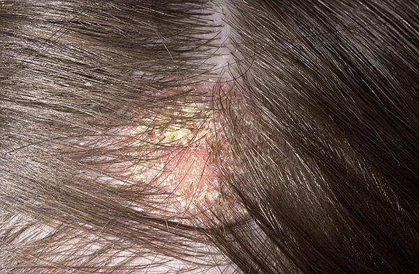 Zheleznovodsk pikkelysömör kezelése ahol a pikkelysömör külföldön kezelik