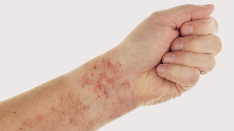 Vörös foltok a lábán: sötét, barna foltok oka, ha viszket, pelyhes - Okoz