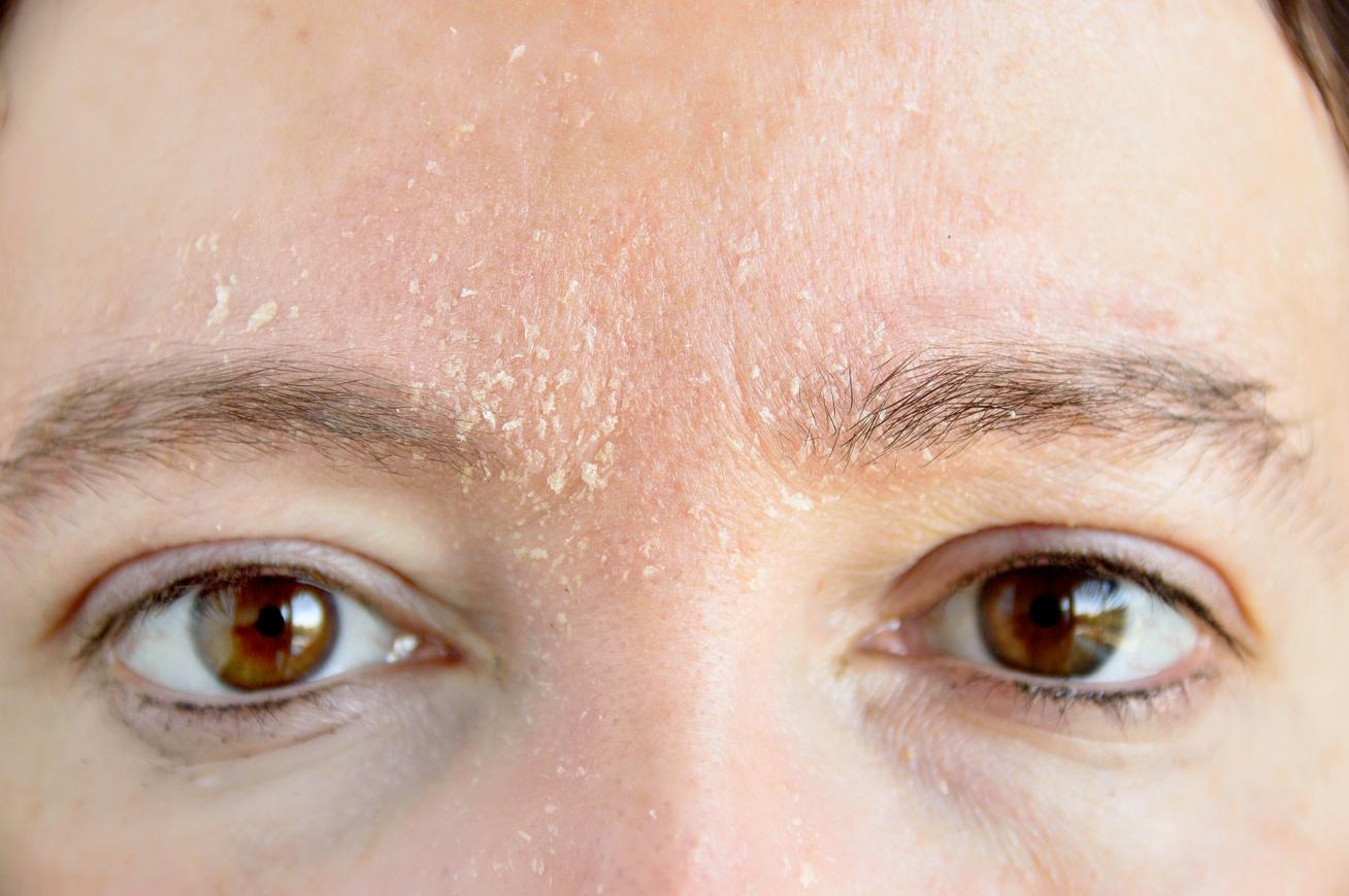 Piros foltok a homlokon: okok és kezelés
