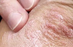 az orrnyíláson a vörös folt hámlik pikkelysömör kezelése vaninóban